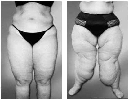 Gribok auf den Beinen zwischen der Finger des Fotos der Symptome